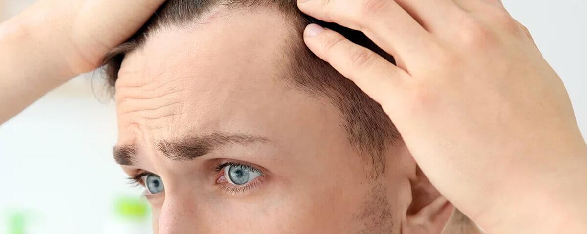 Vorher nachher geheimratsecken minoxidil Haartransplantation Geheimratsecken: